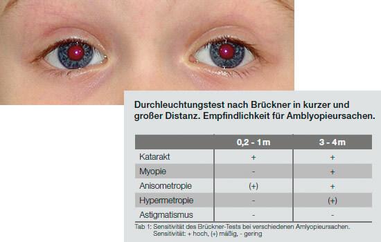Früherkennung durch Brückner-Test