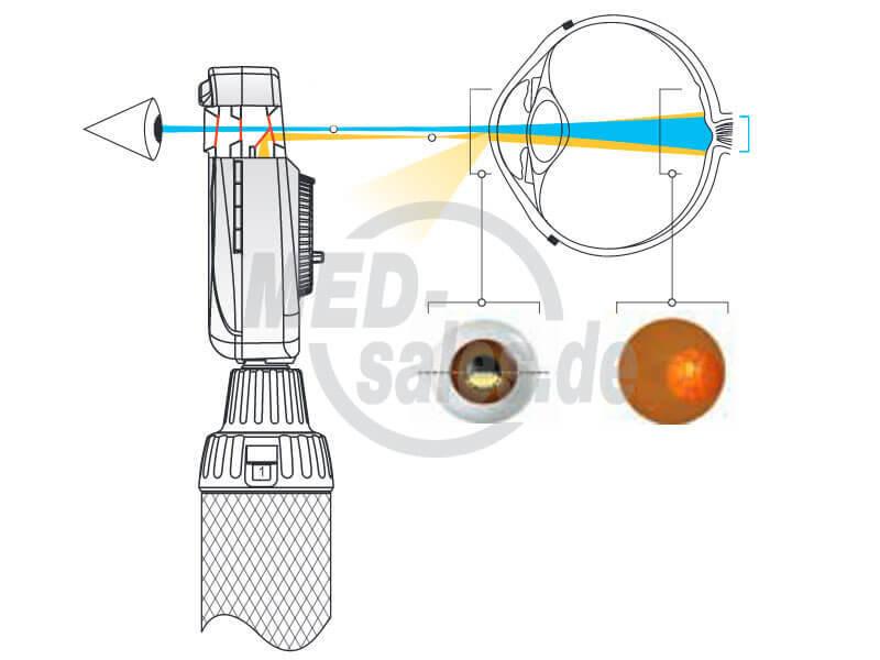 """Das """"Asphärische Optische System"""" (AOS) von HEINE"""